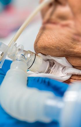 Entretien d'une trachéostomie reliée à un ventilateur